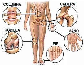 Artrosis-en-diferentes-partes-del-cuerpo