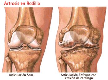 Artrosis_en_rodilla