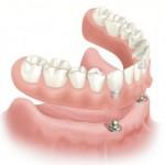 Prótesis sobre dentadura