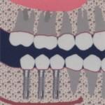 Prótesis de cerámica sobre implantes